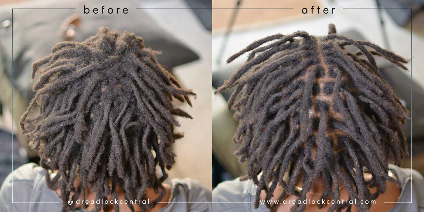Afro Dreads Dealing With Thin Spots And Breakage