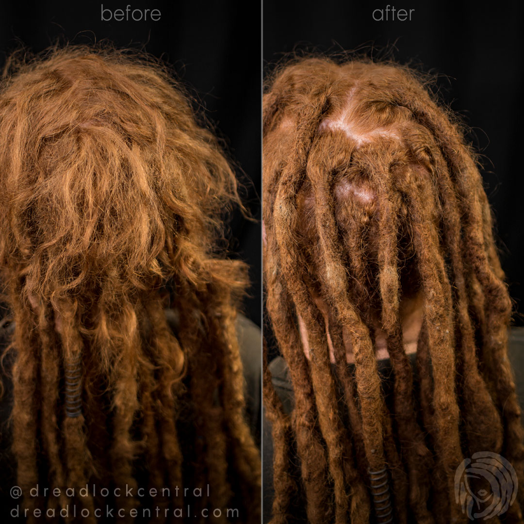 Dreadlock Reconstruction on 19 year old Dreads